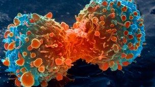 _68791932_m1320644-lung_cancer_cell_division,_sem-spl
