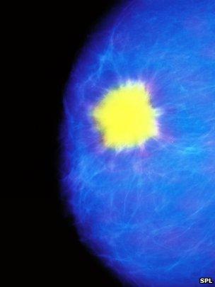 _70126398_m1220078-false-colour_mammogram_showing_breast_cancer-spl