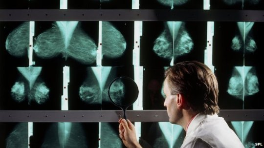_72245573_m4150291-doctor_examines_breast_mammograms_on_a_lightbox-spl(1)3743836
