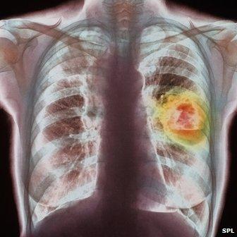 _73486655_lungcancer-spl
